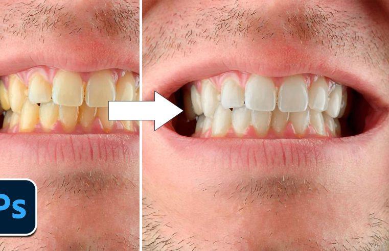 Sbiancare i denti con Photoshop in 3 minuti
